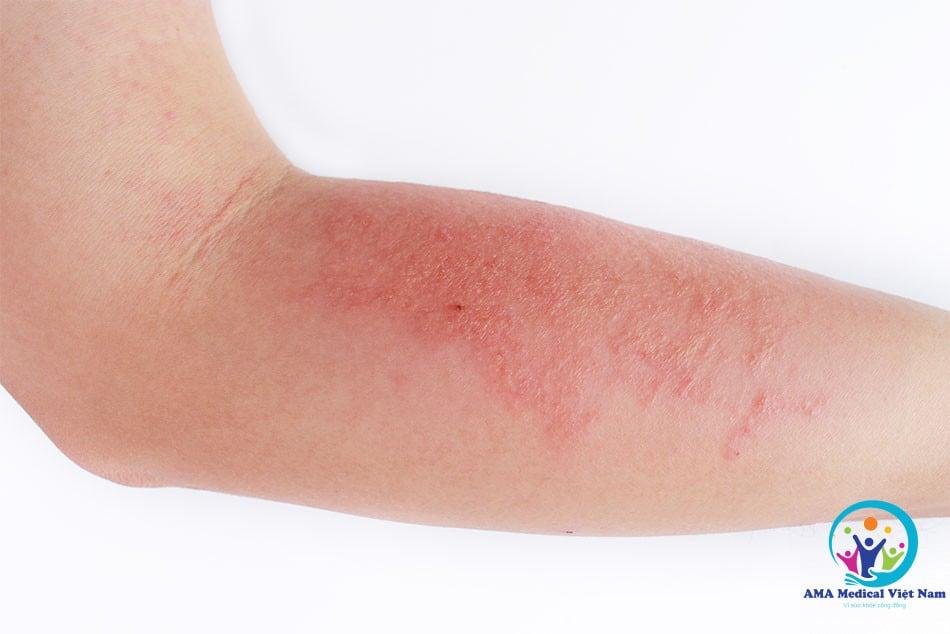 Một số tác dụng phụ thường gặp của Darinol như kích ứng da, ngứa hay nổi mẩn, xuất hiện những vết sần trên da