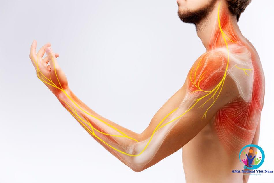 Đau do dây thần kinh bị chèn ép