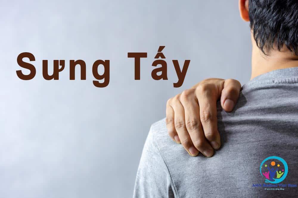 Sưng tấy có thể xảy ra trên toàn bộ cánh tay hoặc khu trú ở một số chỗ như khu vực gãy xương hoặc bao bị viêm