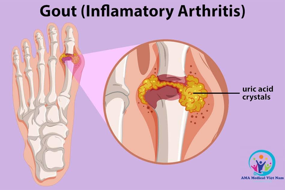 Zuryk dùng để điều trị bệnh gout