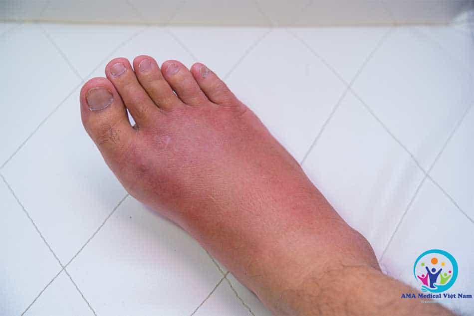 Thepharm dùng để trị phù nề do viêm, sau chấn thương hoặc sau phẫu thuật