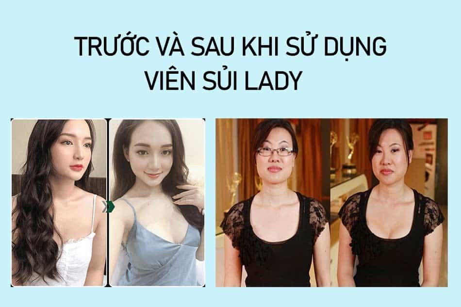 Tác dụng của Viên sủi Lady